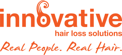 Innovative Hair Loss Solutions